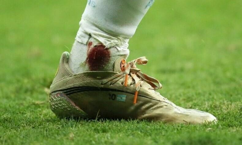 Messi bermain dengan kaki kirinya berdarah